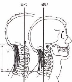 首のイラストの写真